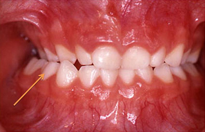 ortodoncia-infantil1