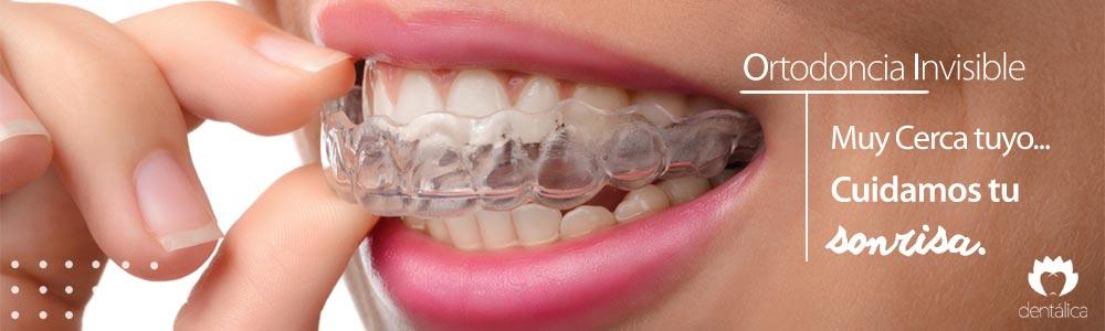 ortodoncia invisible dentalica